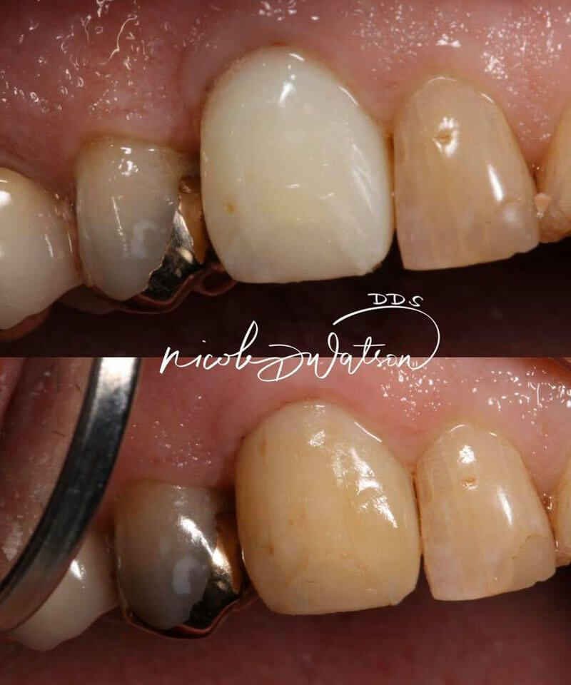 smile gallery image; before and after dental appointment