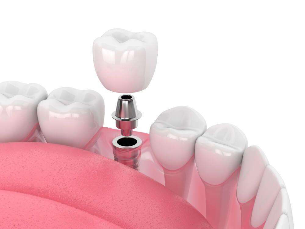 dental implant being put into teeth