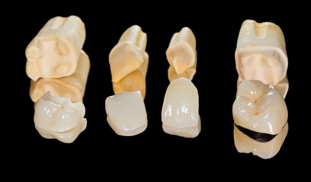 dental restorations on black background