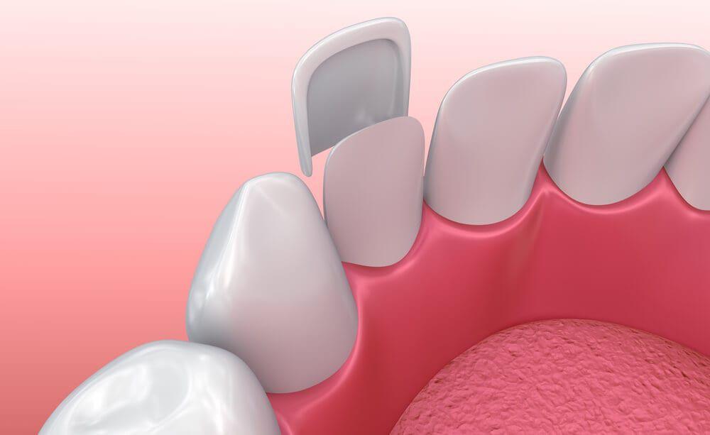 veneer being applied to a set of teeth
